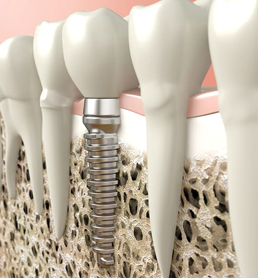 Dental Implants, Legacy Dental, Lethbridge Dentist
